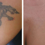 Laser Tattoo Removal Before After