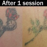 Laser-tattoo-removal-1-session