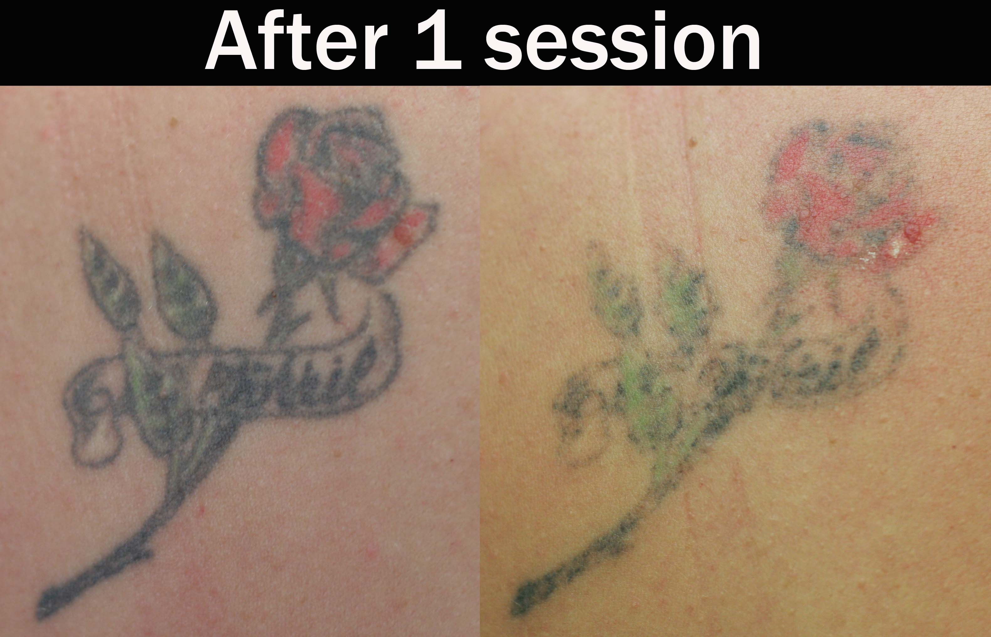best tattoo removal : Laser Tattoo Removal Quotes