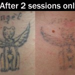 Laser-tattoo-removal-2-sessions
