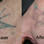 Laser-tattoo-removal-swallow