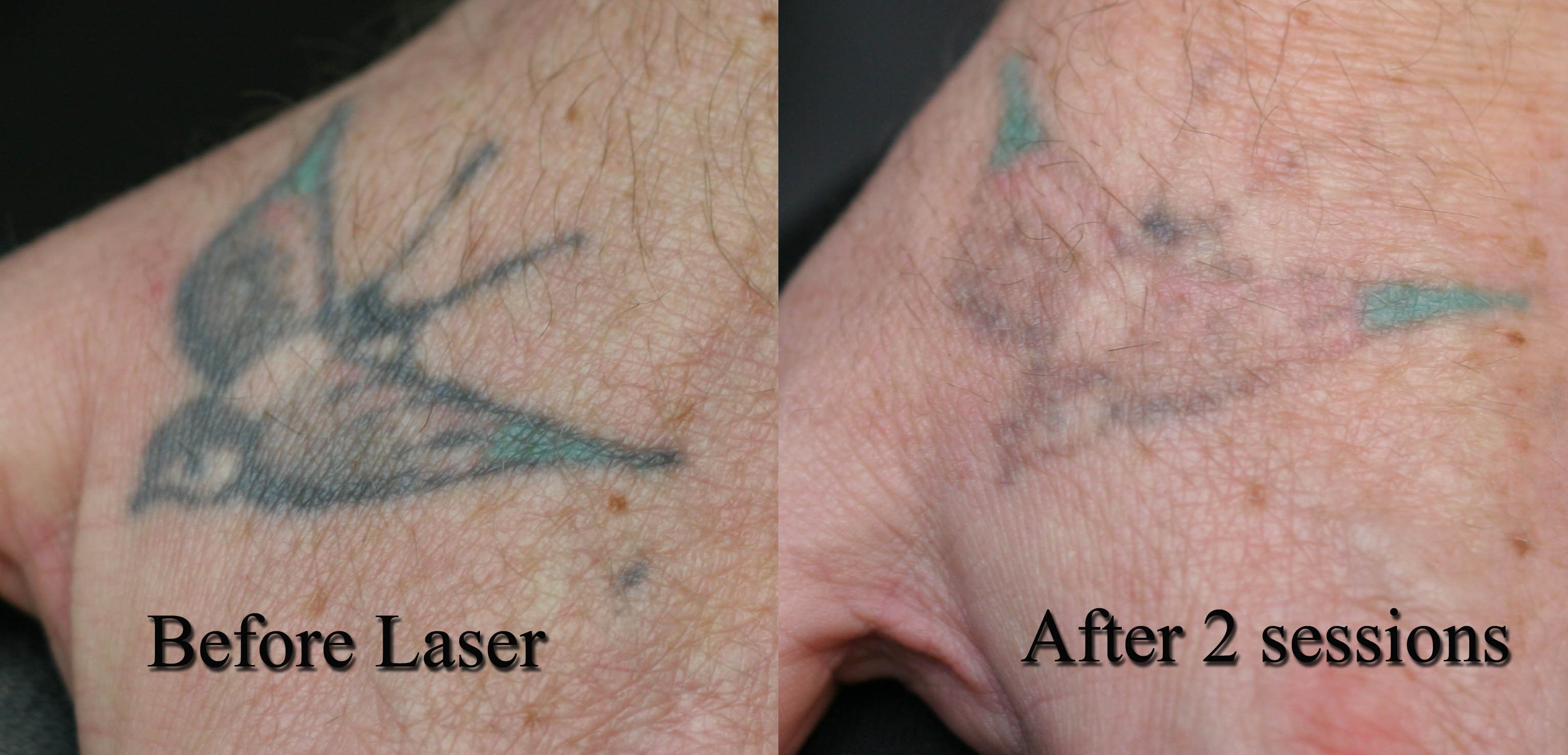 Laser-tattoo-removal-swallow | Tattoo Love