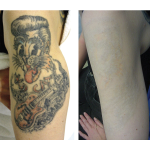 Laser_Tattoo_Removal-stray cats