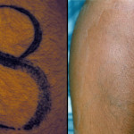 Tattoo-Removal-Methods1