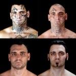 Tattoo_removal_face