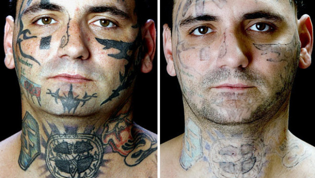 ... 2013 at 620 × 350 in Tattoo Removal Pictures . ← Previous Next