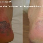 heel-tattoo-before-and-after-laser-removal