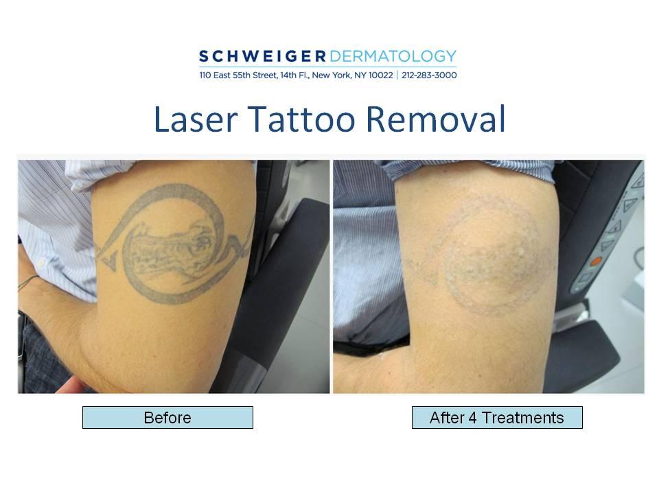 laser-tattoo-removal-NYC | Tattoo Love