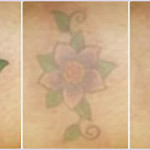 laser-tattoo-removal-pictures-flower