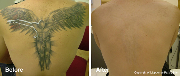 Tattoo Laser Removal Oxfordshire