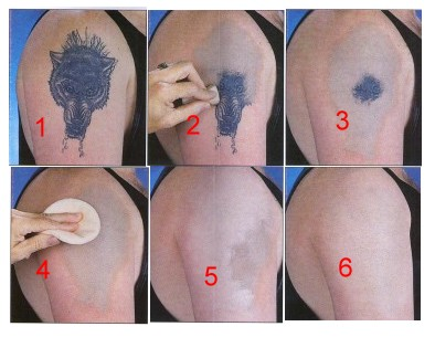 Tattoo Removal Cream submited images.
