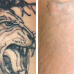 tattoo-removal-partial-or-total-lion