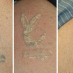 tattoo_removal-playboy