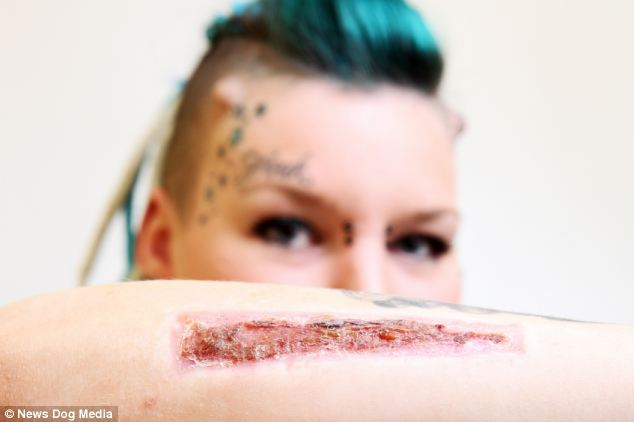 scalpel-tattoo-removal