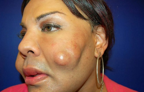 Tattoo face surgery gone wrong tattoo love for Face tattoos gone wrong